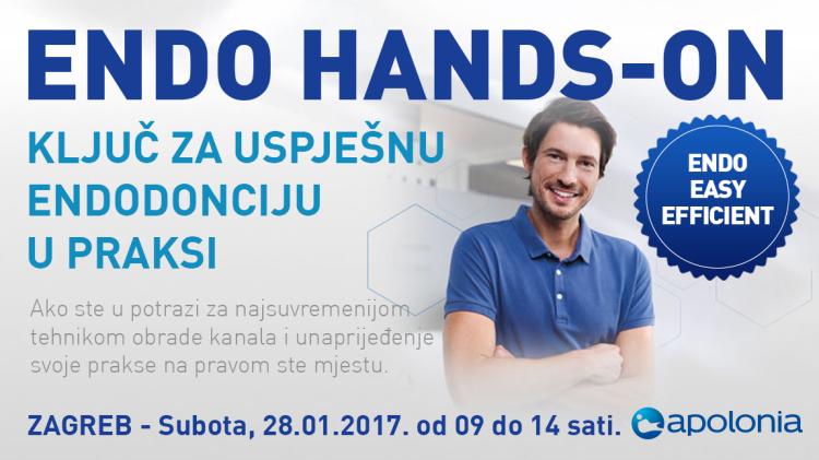 Radni tečaj iz strojne endodoncije – Najnovije tehnike instrumentacije VDW.Reciproc – Zagreb 28.01.2017.