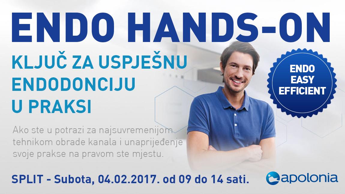 Radni tečaj iz strojne endodoncije – Najnovije tehnike instrumentacije VDW.Reciproc – Split 04.02.2017.