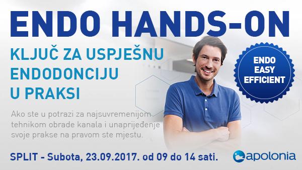 Radni tečaj iz strojne endodoncije – Najnovije tehnike instrumentacije VDW.Reciproc – Split 23.09.2017.