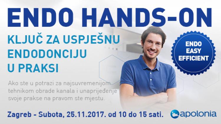 Radni tečaj iz strojne endodoncije – Najnovije tehnike instrumentacije VDW.Reciproc – Zagreb-Sesvete, 25.11.2017.